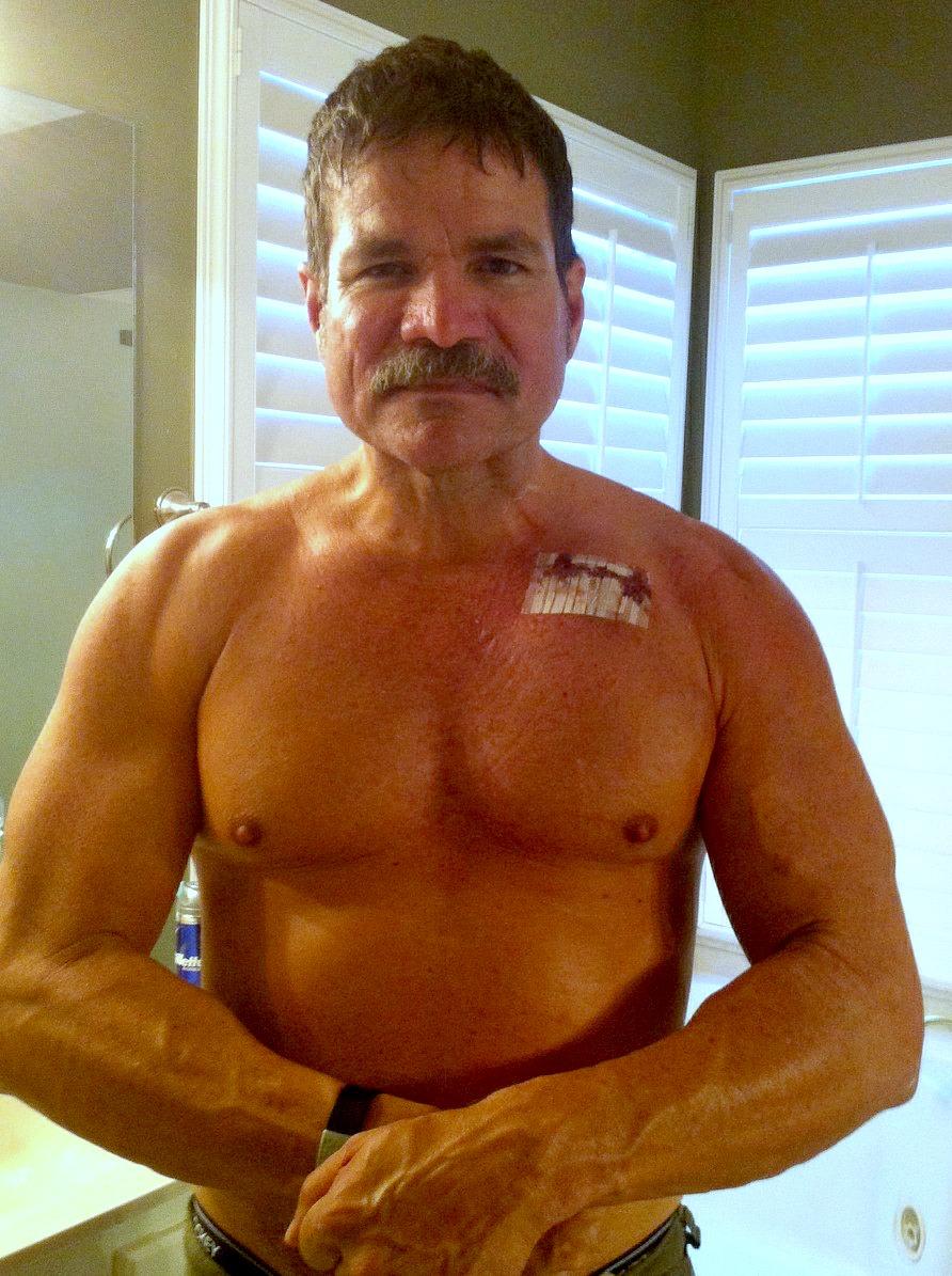 heart-disease saved my life